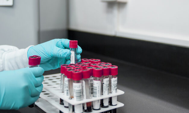 Acide phosphonique dans les produits bio : l'OPTA propose une solution court terme à BIOFACH